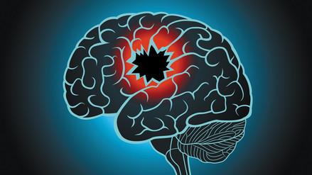 Las secuelas que deja una lesión cerebral