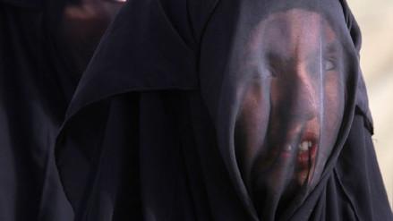 Piden 18 años de cárcel para padre que torturó a su hija con un soldador