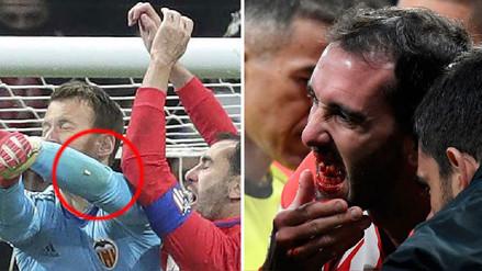 Diego Godín sufrió un duro golpe que arruinó su dentadura