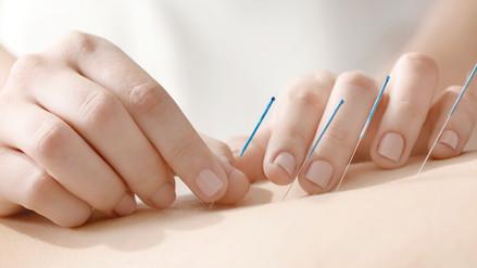 La ciencia detrás de la acupuntura y otras prácticas de la medicina china