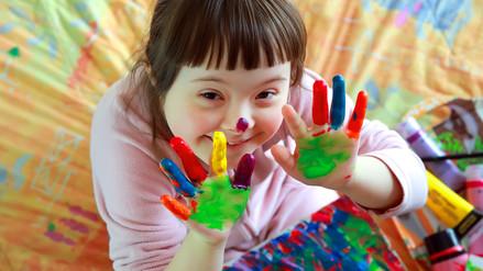 Cinco consejos para padres de niños con Síndrome de Down