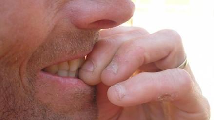 Inglaterra: Joven casi pierde la vida al contraer infección por morderse las uñas