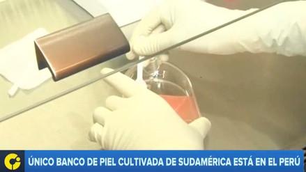 La técnica de cultivo de piel que mejorará el tratamiento de Eyvi Ágreda