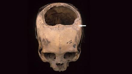Hasta 8 de cada 10 pacientes sobrevivieron a las trepanaciones craneanas hechas por los Incas