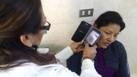 Aplicativo de celular detecta casos sospechosos de cáncer de piel