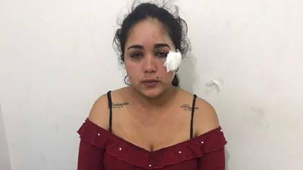 Sujeto ataca en el rostro a colombiana con un vaso de vidrio roto