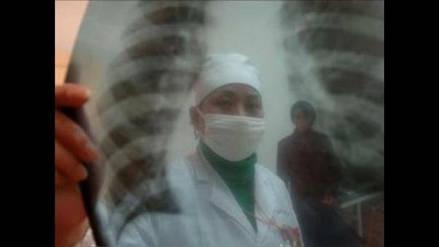 Un radiografía de las principales enfermedades en seis regiones del Perú