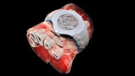 Se realizaron las primeras imágenes de rayos X en 3D a color