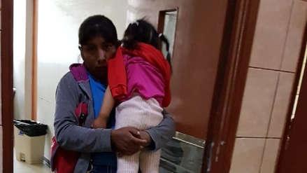 Arequipa: Perro muerde en la cara a niña de tres años