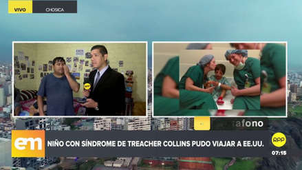 Niño con síndrome de Treacher Collins fue operado en EE.UU. tras difusión de su caso en RPP