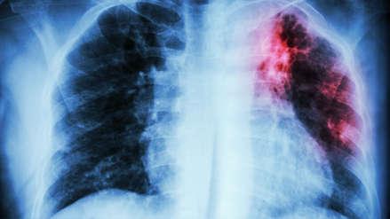 Fibrosis pulmonar: Así actúa esta enfermedad respiratoria en nuestro organismo