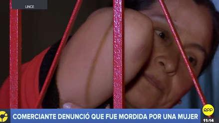 Comerciante denunció que fue mordida por una mujer tras asistir a mitin de candidato en Lince