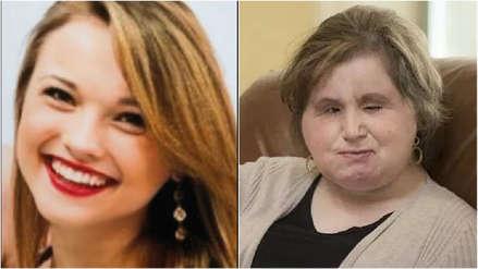 EE.UU. | La historia de la paciente más joven en recibir un trasplante de rostro
