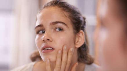 ¿Adiós a los granitos? Una vacuna contra el acné está cada vez más cerca
