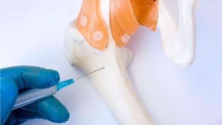 Mieloma Múltiple: ¿qué daños produce este tipo cáncer a la sangre?