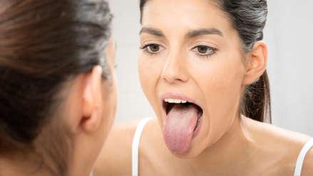 """El síndrome de la """"lengua peluda negra"""": la extraña condición causada por un antibiótico [FOTO]"""