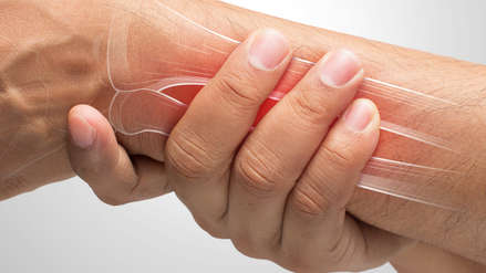 Despejando dudas: ¿Me puedo recuperar totalmente de una fractura?