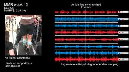 Un parapléjico consigue caminar gracias a la estimulación eléctrica