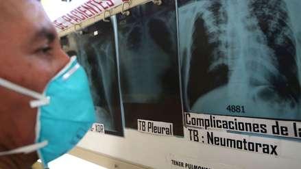 Minsa: Perú ha destinado S/. 400 millones para luchar contra la tuberculosis el 2018