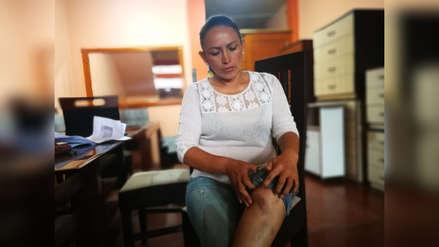 Candidata a la alcaldía de Florencia de Mora denuncia agresión física