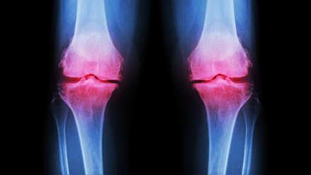 Osteoartrosis: Los factores de riesgo que llevan a sufrir esta enfermedad a las articulaciones