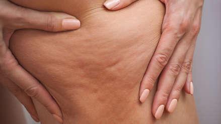 Celulitis: Dile adiós a la piel de naranja
