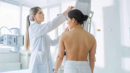 Los temores más comunes sobre del despistaje de cáncer de mama