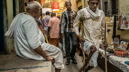 La poliomielitis: una enfermedad que no tiene cura y puede causar parálisis