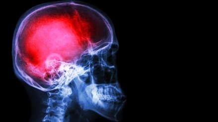 Los accidentes cerebrovasculares son la segunda causa de muerte en el Perú