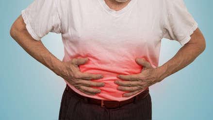 Cáncer de páncreas: Recomendaciones para evitar este tipo de neoplasia