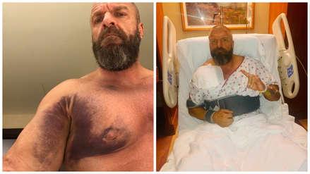 Triple H fue operado de un desgarro en el pecho y estará seis meses fuera de la WWE