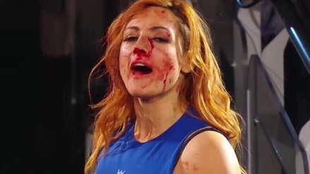 Tras lesión, Becky Lynch se enfrentaría a Ronda Rousey en WrestleMania 35