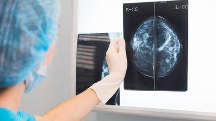 En el Perú se registran 6500 pacientes con cáncer de mama en lo que va del 2018