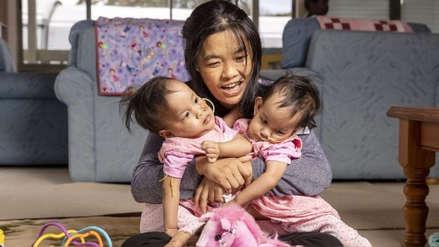 Gemelas siamesas de 15 meses separadas en operación todavía quieren estar juntas