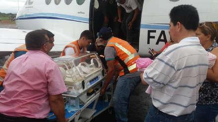 Una niña nació con el corazón fuera del tórax en Bolivia