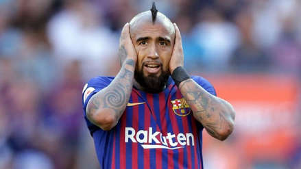 Arturo Vidal reveló qué debe pasar para cambiar de peinado