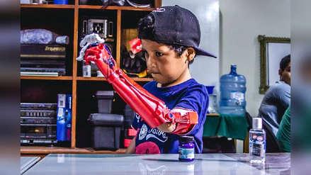 Piurano creó emprendimiento que desarrolla prótesis para mejorar la calidad de vida de las personas con discapacidades