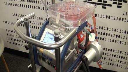 Conoce la máquina que funciona como un corazón artificial para los seres humanos