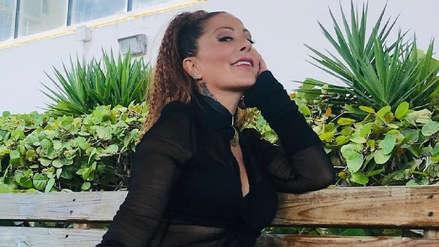 Alejandra Guzmán sorprende por la nueva apariencia de su rostro