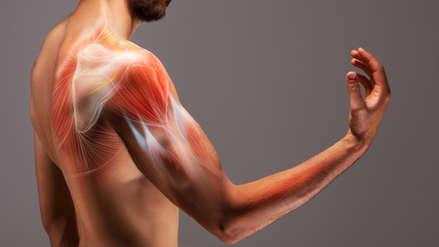 Si tengo un dolor en el hombro... ¿me pude haber desgarrado un tendón?