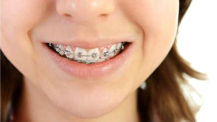 La ortodoncia no asegura la salud bucal a largo plazo