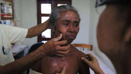 La lepra, la enfermedad bíblica que aún afecta a la población amazónica del Perú