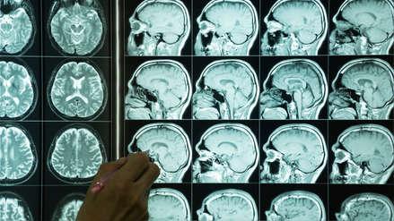 El cerebro de una mujer es 4 años más joven que el de un hombre, según estudio