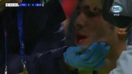 Sergi Roberto terminó ensangrentado tras recibir un codazo en la boca durante el Barcelona-Lyon