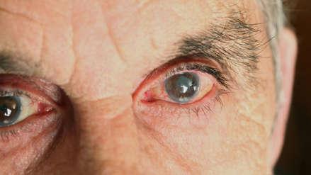 El glaucoma, la enfermedad que afecta hasta 20 mil peruanos y muchos no lo saben