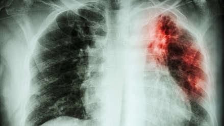 Mitos sobre la transmisión y el tratamiento de la tuberculosis que debes olvidar