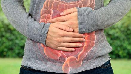 Cáncer de colón: Si se detecta en etapas iniciales, las posibilidades de sobrevivencia aumentan hasta 96%