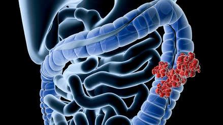 ¿Cómo prevenir el cáncer de colon, una de las neoplasias más mortales para los peruanos?
