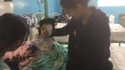 Niña de dos años fue mordida por su perro y quedó con el rostro desfigurado en Arequipa