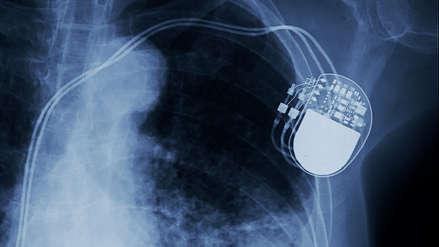 Este es el aparato que impide la muerte súbita por paro cardíaco